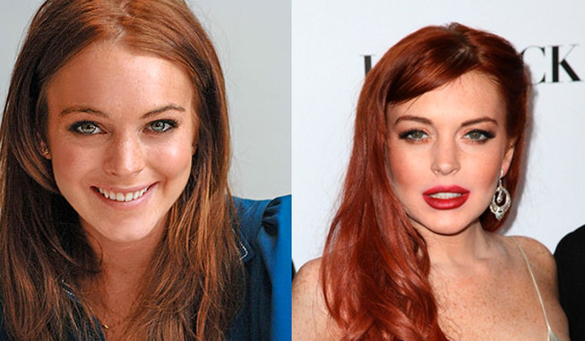 Worst celebrity plastic surgery fails[2]- Chinadaily.com.cn Kim Cattrall Boyfriend
