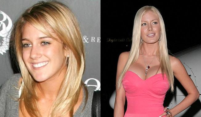 Worst celebrity plastic surgery fails[4]- Chinadaily com cn