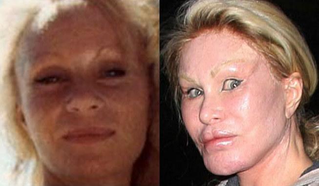Worst celebrity plastic surgery fails[8]- Chinadaily com cn