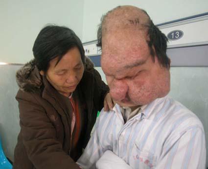 l'uomo elefante con un tumore molto grande su tutto il volto