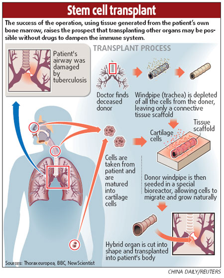 Woman Gets First Stem Cell Windpipe