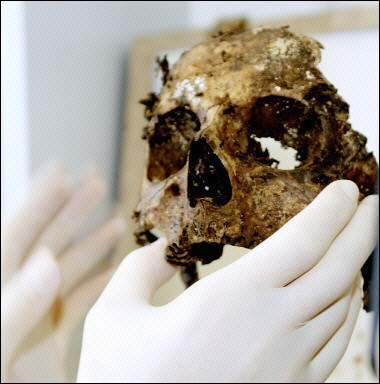 A paleopathologist inspects the decomposed remains of a human skull.