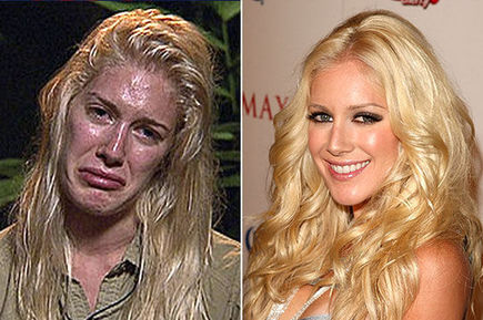 heidi montag before and after plastic surgery. heidi montag before and after