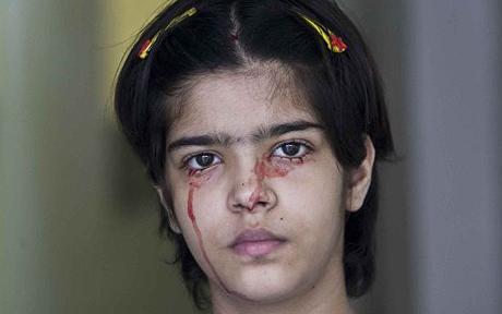 印度女孩怪病13岁少女福建三明怪病女孩
