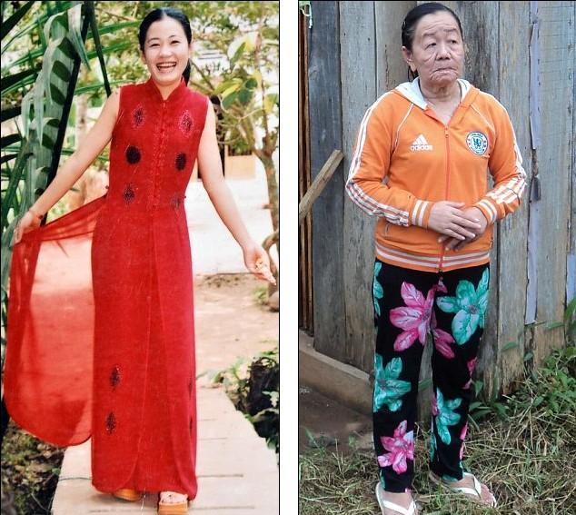 越南性感乱引发吃药美女怪病26岁佳龄变70岁脱衣舞v性感的皮肤娘图片