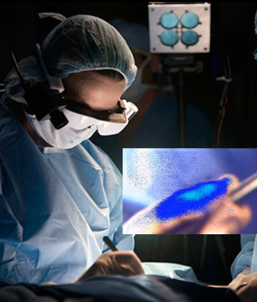 """美学者发明可视眼镜 能清楚""""看见""""癌细胞"""