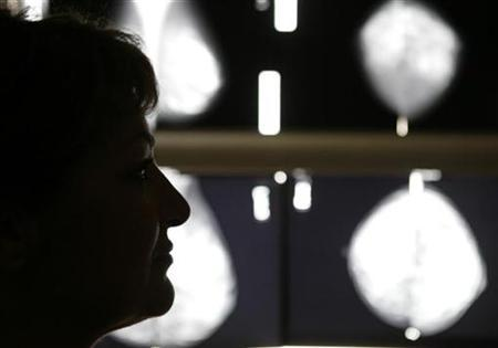 Early form of breast cancer may need new name