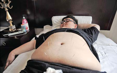 TCM treatments offering convenient weight loss options. - Culture China