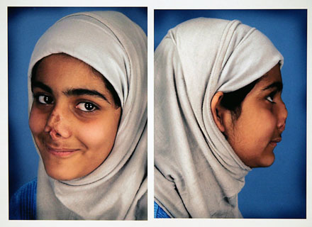 Iraqi girl after face reconstruction