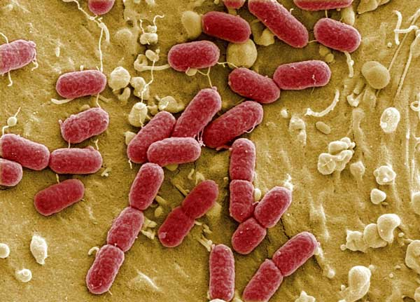 File picture taken with electronic microscope shows ehec bacteria